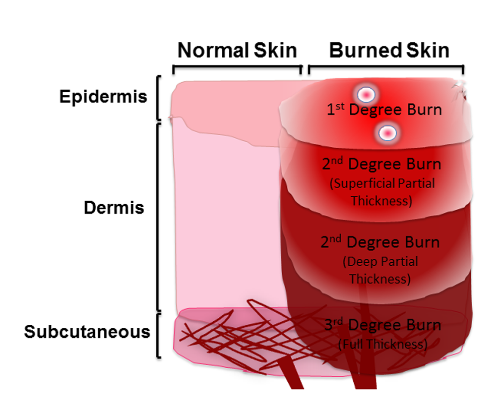 the three categories of burn Electrical burns are burns that are caused by coming in contact with an electrical source about 1,000 people in the united states die from electrical burns.