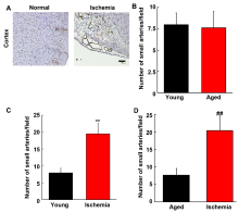 Ischemia-induced Angiogenesis Is Attenuated In Aged Rats