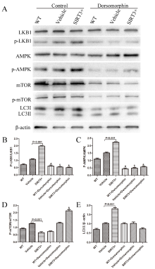 SIRT3 Protects Rotenone-induced Injury in SH-SY5Y Cells by
