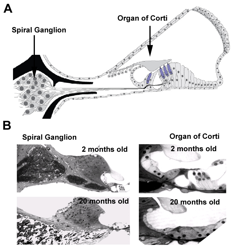 why do hair cells and spiral ganglion neurons in the